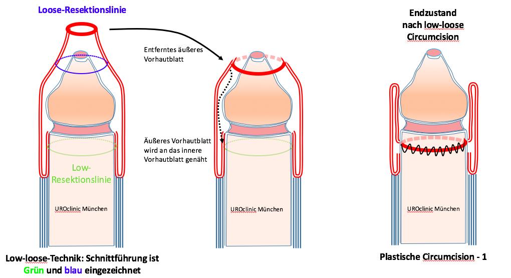 Beschneidung München Vorhaut entfernen bei Verengung